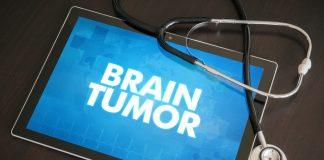 Brain Tumor Acquisition Treatment